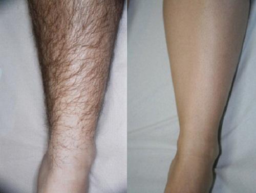 Có thể bạn chưa biết lá trầu có thể dùng tẩy lông cực hiệu quả