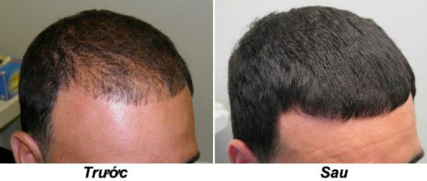 5 cách chống rụng và giúp tóc mọc lại ở nam giới