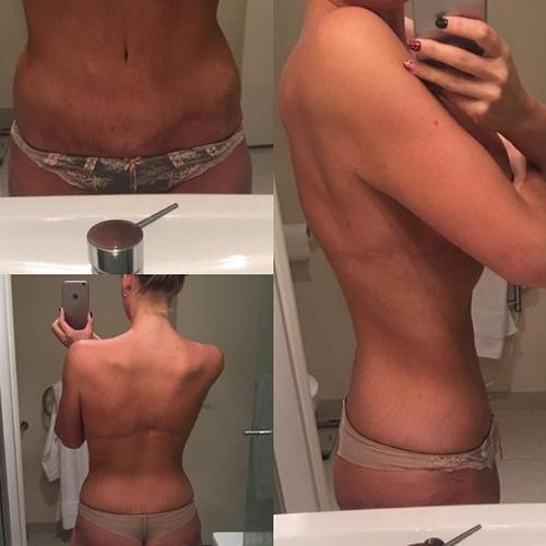 Choáng váng hình anh của cô gái khi giảm được 85 kg